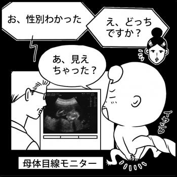 連載:オイラの大冒険 第16話<br /> 「性別判明(16w)」